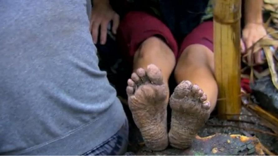 lindsey-feet