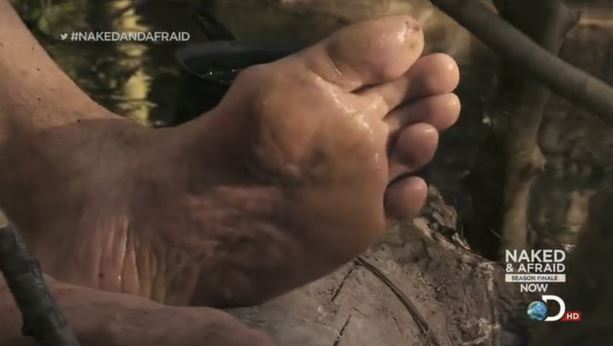 nakedafraid_trenchfoot
